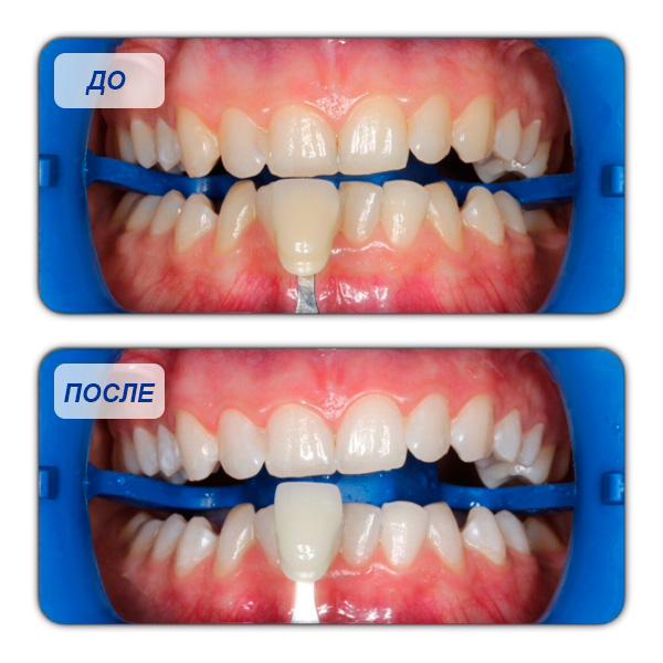 отбеливание зубов zoom 4 спб