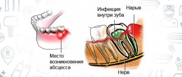 Фурункул зуба