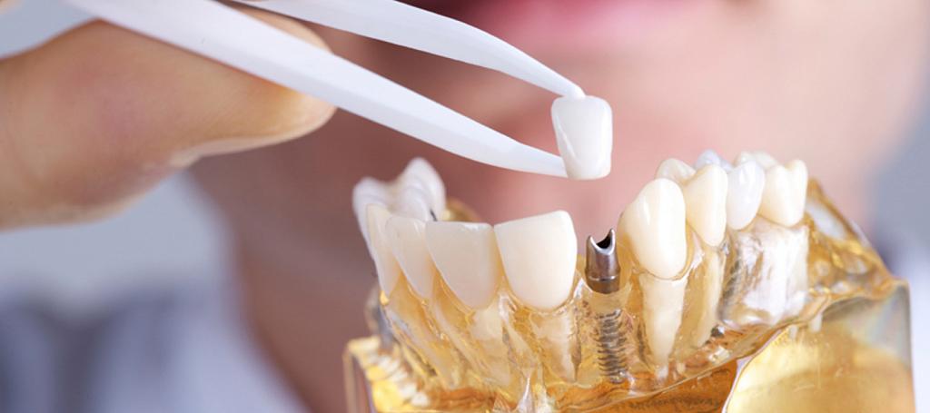 Зубные импланты: мифы и реальность - Каграманян Нина Владимировна