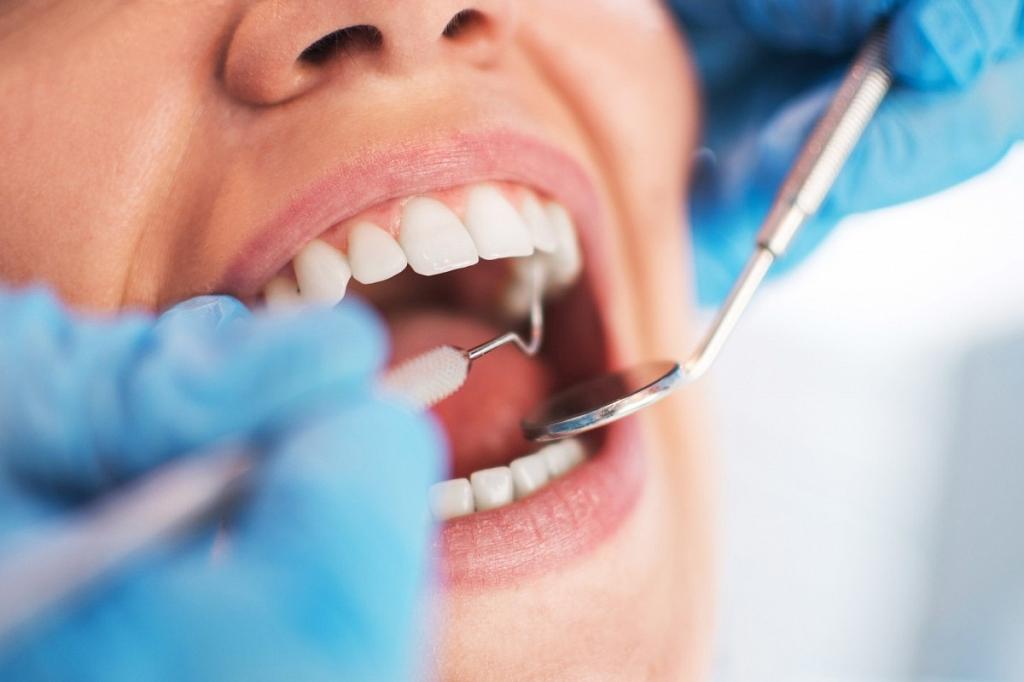 Лечение зубов при повышенном рвотном рефлексе