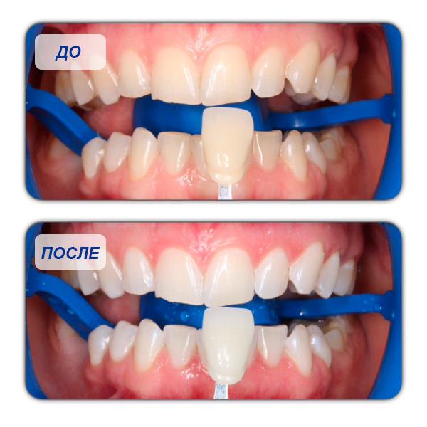 отбеливание зубов лампой холодного света отзывы